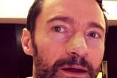 Hugh Jackman se opera por 5ta vez de cáncer de piel