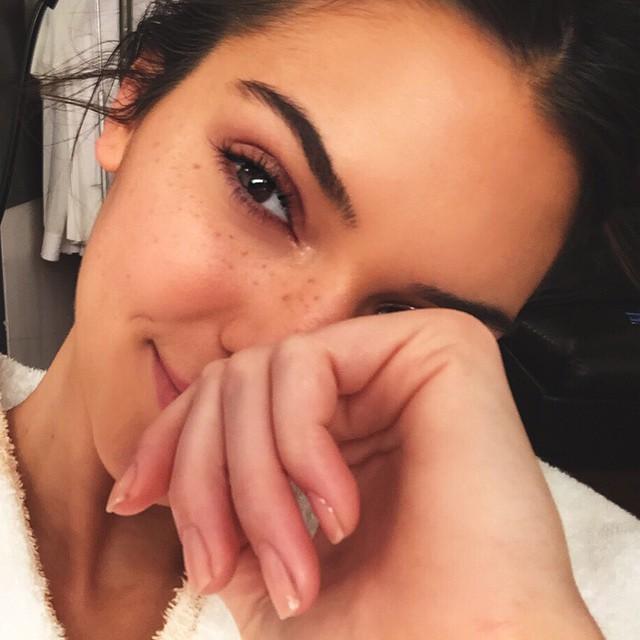 kendall-jenner-freckles