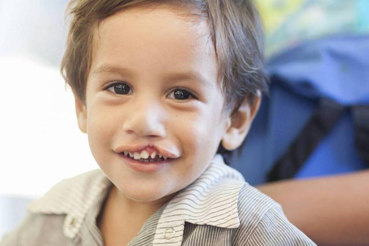 Operación Sonrisa presenta su primera misión del año en la búsqueda de seguir cambiando vidas